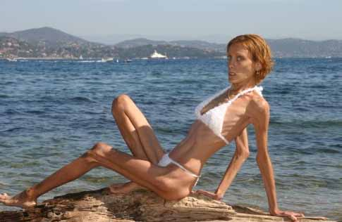French Anorexic Model Isabelle Caro